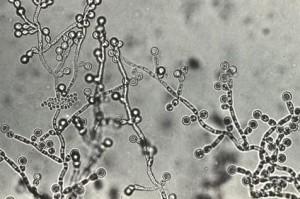 カンジダ菌の写真