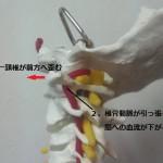 頸椎一番の状態2