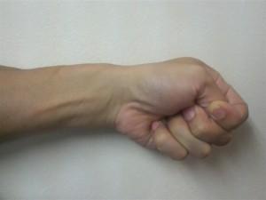ドケルバン腱鞘炎の検査法(フィンケルシュタインテスト)